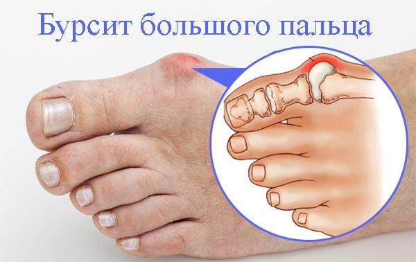 Как лечить бурсит большого пальца