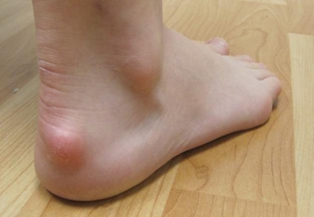 Как выглядит бурсит стопы